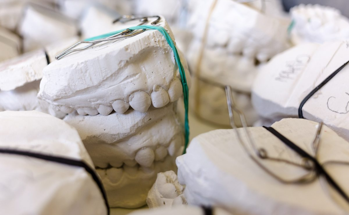 Złe podejście odżywiania się to większe niedostatki w jamie ustnej natomiast również ich zgubę