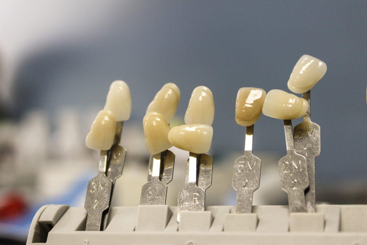 Ładne zdrowe zęby także godny podziwu przepiękny uśmieszek to powód do zadowolenia.